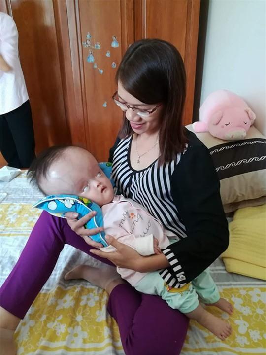 Đã quyên góp được gần 500 triệu đồng chuẩn bị cho ngày mai đưa bé gái đầu to đi Singapore chữa bệnh - Ảnh 5.