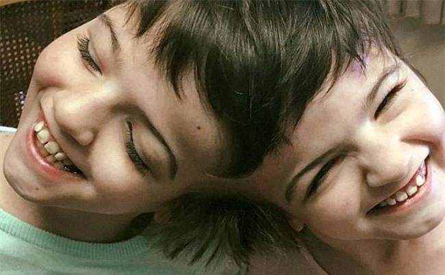 Hai bé sinh đôi dính liền đầu bác sĩ nói sau 1 ngày là chết, và đây là hình ảnh sau 11 năm - Ảnh 2.