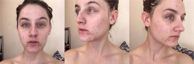 Cắt bỏ một thứ duy nhất trong quy trình chăm sóc da, cô gái nhận lại kết quả mỹ mãn không thể ngờ - Ảnh 1.
