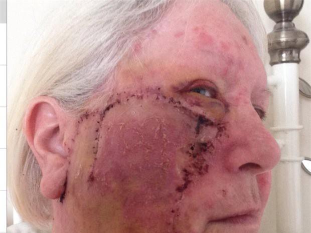 Thích nhuộm da tắm nắng, quý bà bị khoét lỗ sâu hoắm trên mặt do ung thư - Ảnh 2.
