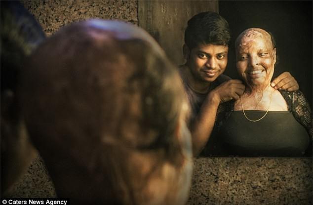 10 năm sau vụ tạt axit kinh hoàng, cô gái trẻ đã tìm được tình yêu của đời dù phải mang gương mặt ác quỷ - Ảnh 3.
