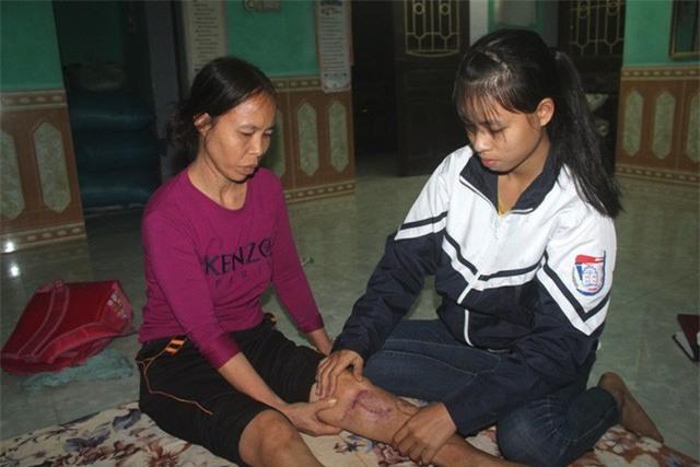 Bố ung thư, mẹ tai nạn và ước mơ dang dở của 3 chị em nữ sinh trường y - Ảnh 2.