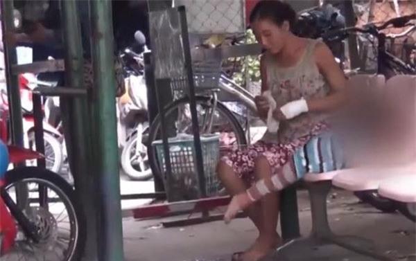 "tiet lo bat ngo ve doi nam nu trong clip ""chan dat"" tre truoc cong bv lay tien tiem chich - 2"