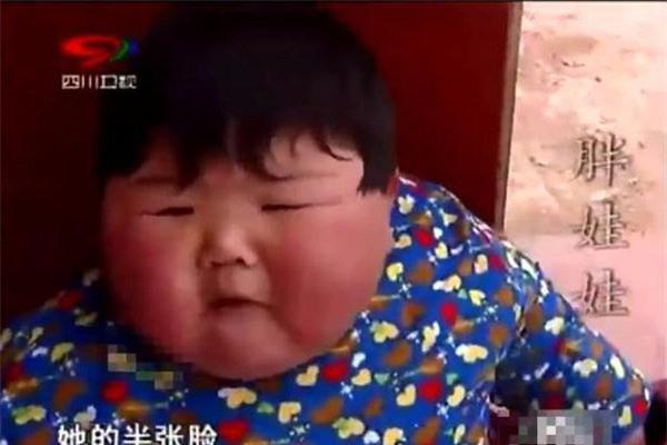 """me chieu chuong cho an uong thoai mai, be 2 tuoi co can nang """"khung"""" gan 40kg, chan bien dang - 4"""