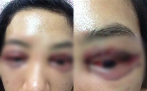 Vụ cô gái đi cắt mí mắt gây xôn xao MXH: Khi cô gái đến làm việc, chủ spa hỏi sao lại bêu xấu hình ảnh spa? - Ảnh 1.