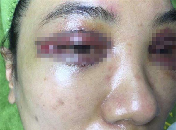 Giữa ồn ào cô gái trẻ phẫu thuật hỏng mí, Khánh Linh The Face trấn an chị em-3