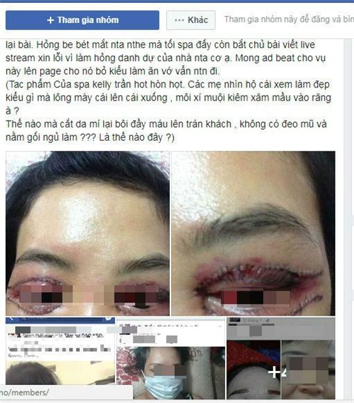 Cô gái Hà Nội mắt thâm đen sau khi cắt mí ở spa lần đầu lên tiếng sau sự cố