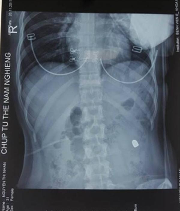 Cô gái bị đạn lạc bắn thủng bụng ngay trên đường ở Hà Nội - Ảnh 1.