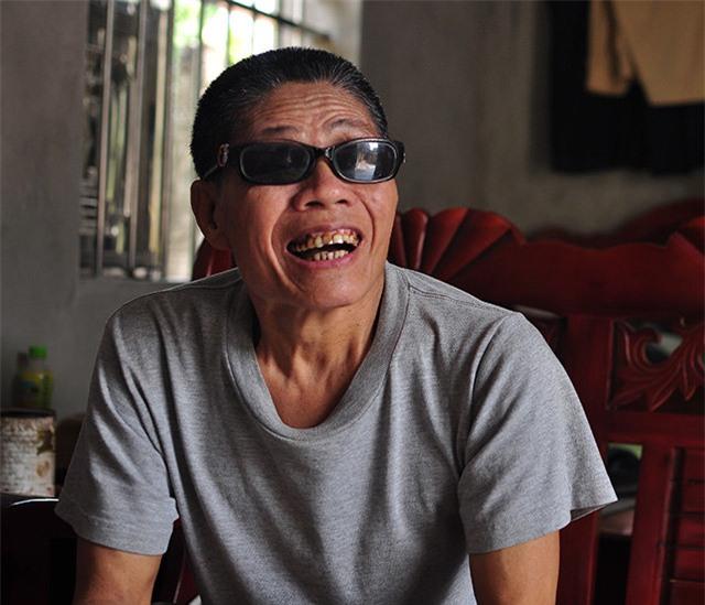 """cau chuyen ve """"tinh chi, duyen em"""" cam dong cua nguoi thuong binh mu loa - 1"""