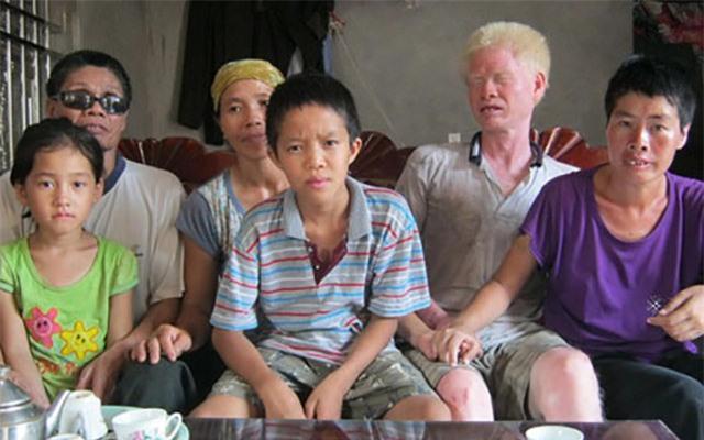 """cau chuyen ve """"tinh chi, duyen em"""" cam dong cua nguoi thuong binh mu loa - 2"""