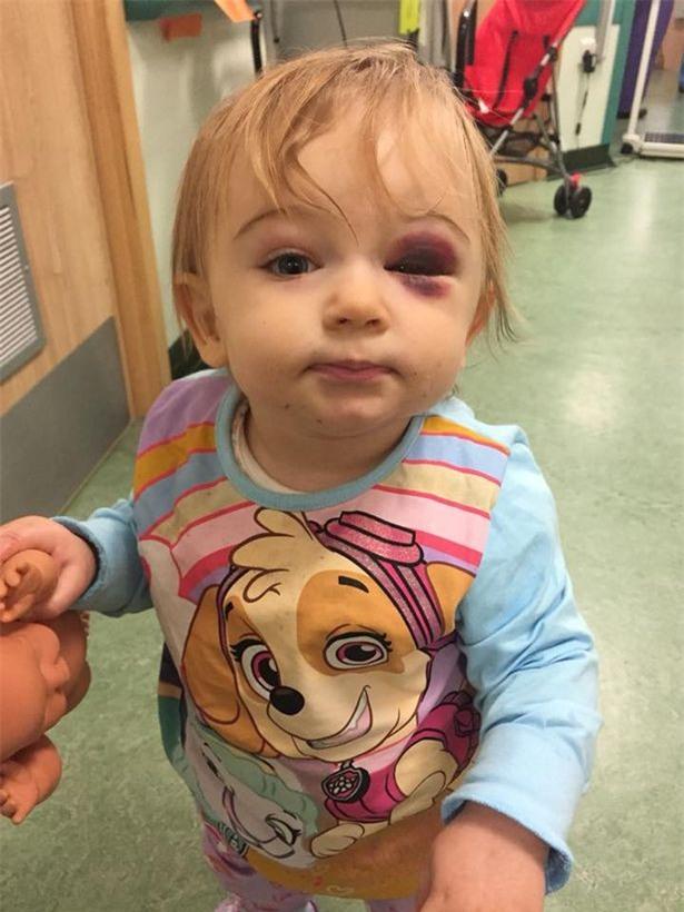 """Bé gái vỡ xương sọ vì """"sát thủ thầm lặng"""" trong nhà mà ít bố mẹ nào để ý đến - Ảnh 4."""