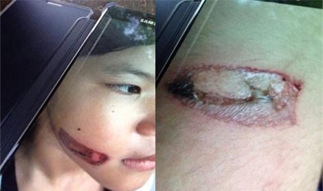 Bé gái bị bạo hành bằng sắt nung đỏ dí vào hai cánh tay - Ảnh 1.
