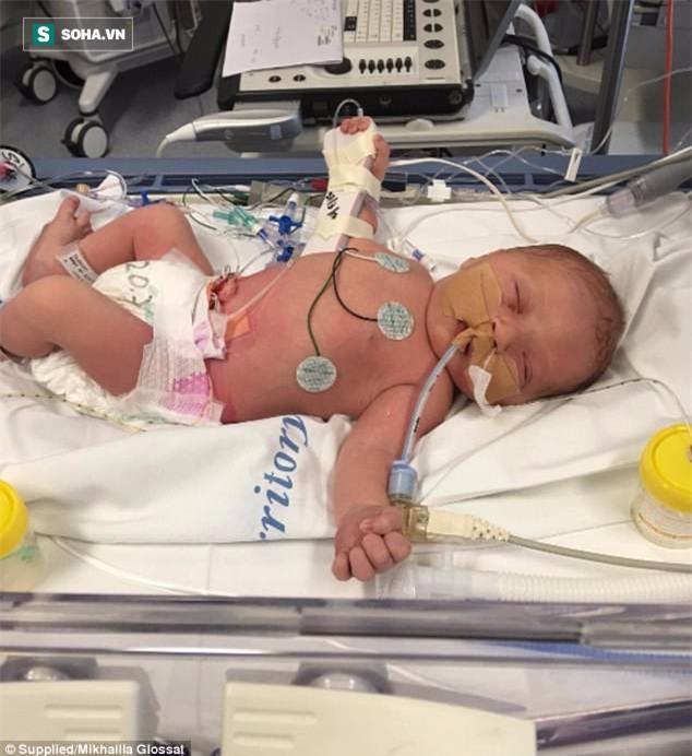 Con tử vong sau 3 ngày chào đời vì mẹ nhiễm một loại vi khuẩn phổ biến lúc mang bầu - Ảnh 3.