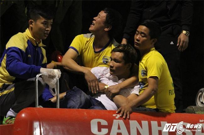 Video: Xe cứu hỏa giải cứu CĐV Thanh Hóa bị cọc sắt đâm xuyên chân - Ảnh 5.