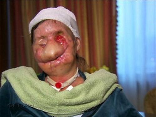 Chỉ vì thay đổi kiểu tóc, người phụ nữ này đã bị con tinh tinh lao vào cắn xé, hủy hoại khuôn mặt - Ảnh 2.