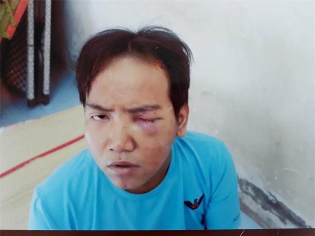 Từng bị bệnh tâm thần phân liệt, bảo vệ dân phố sát hại bé 6 tuổi ở Sài Gòn sẽ bị xử lý thế nào? - Ảnh 1.