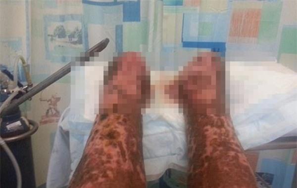 Vì vết xước chưa đến 1cm trên tay, người đàn ông phải cắt bỏ hai chân, chạy thận cả đời - Ảnh 4.