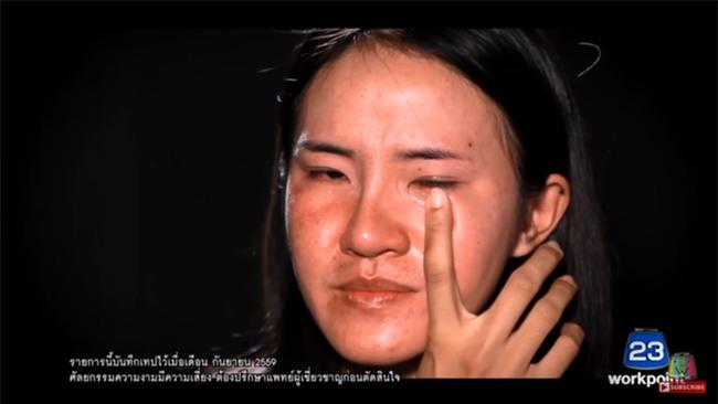 """Nhìn 7 màn """"ác quỷ hóa thiên thần"""" này của Thái Lan, ai cũng sẽ muốn đi phẫu thuật thẩm mỹ ngay tức thì! - Ảnh 10."""