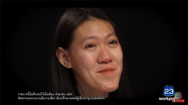 """Nhìn 7 màn """"ác quỷ hóa thiên thần"""" này của Thái Lan, ai cũng sẽ muốn đi phẫu thuật thẩm mỹ ngay tức thì! - Ảnh 14."""