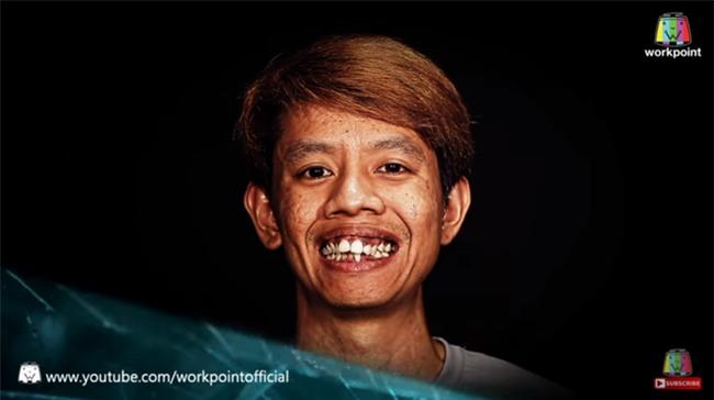 """Nhìn 7 màn """"ác quỷ hóa thiên thần"""" này của Thái Lan, ai cũng sẽ muốn đi phẫu thuật thẩm mỹ ngay tức thì! - Ảnh 4."""