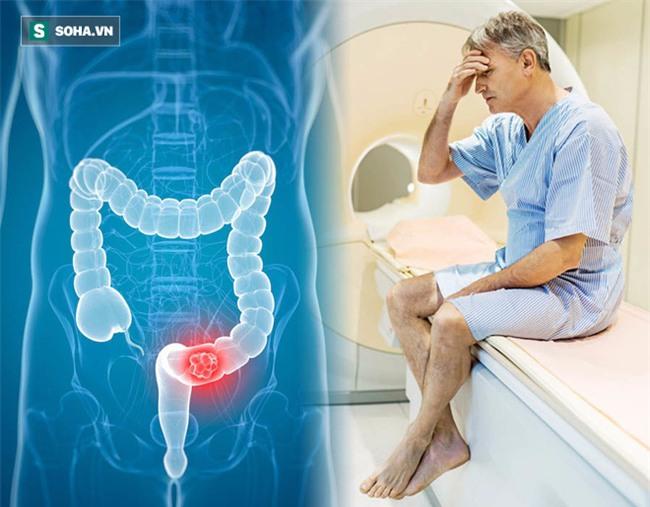 10 dấu hiệu cảnh báo ung thư ở nam giới thường bỏ qua - Ảnh 1.