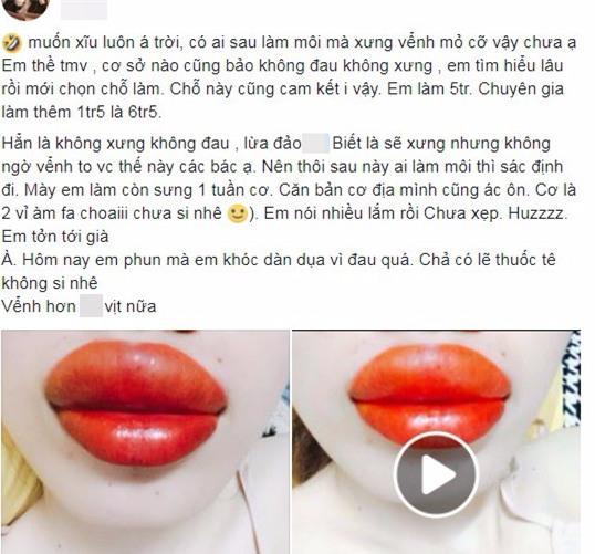 Thẩm mỹ viện quảng cáo phun môi không sưng không đau, cô gái trẻ háo hức đi làm và cái kết đắng ngắt - Ảnh 2.