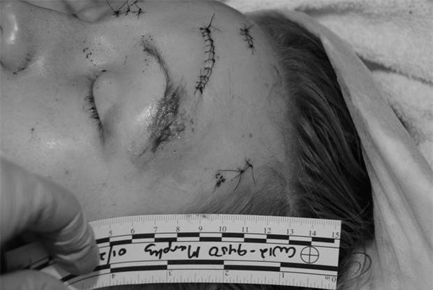 Cho bạn trai ôm lần cuối trước khi chia tay, cô gái xinh xắn đau đớn lãnh 32 nhát dao tưởng như đã bỏ mạng - Ảnh 6.