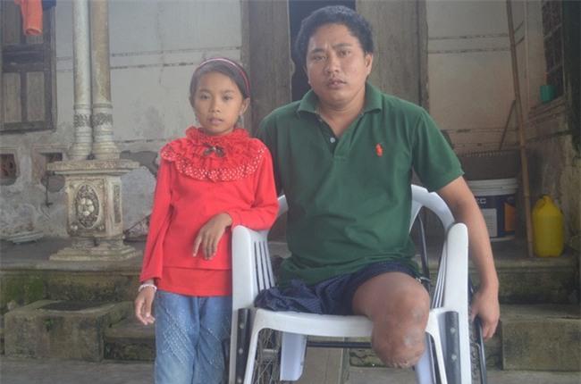 2 đời vợ, 2 chân bị cắt cụt, nguồn sống của người đàn ông này gói gọn ở cô con gái nhỏ - Ảnh 1.