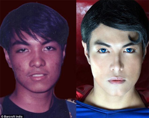 Chàng trai người Philippines vung tiền thẩm mỹ để giống hệt Superman, chỉ thiếu mỗi nước học bay - Ảnh 1.