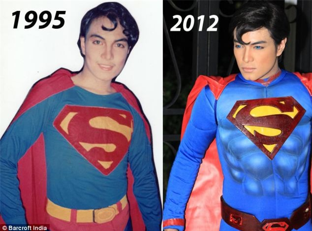Chàng trai người Philippines vung tiền thẩm mỹ để giống hệt Superman, chỉ thiếu mỗi nước học bay - Ảnh 5.