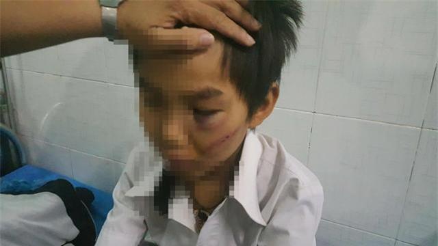 """be trai 11 tuoi bi bo danh da chan thuong: """"chau van xin nhung bo van danh"""" - 1"""
