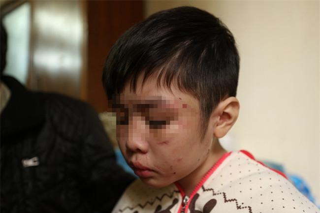 Clip: Bé trai 10 tuổi bị bạo hành dã man kể lại hành trình chạy trốn khỏi nhà bố đẻ, mẹ kế - Ảnh 3.