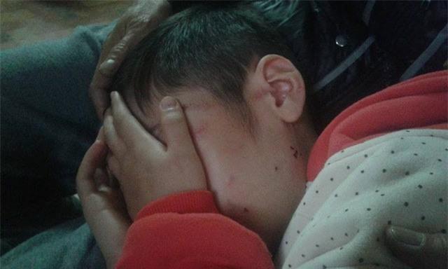 Bạo hành con trai 10 tuổi đến rạn sọ não, bố đẻ và người mẹ kế đối diện mức án 3 năm tù giam - Ảnh 1.