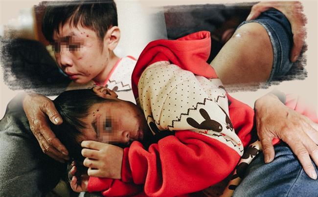 Rơi nước mắt với những đứa trẻ bị bố và mẹ kế bạo hành dã man - Ảnh 1.