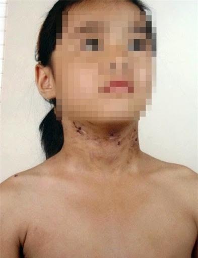 Rơi nước mắt với những đứa trẻ bị bố và mẹ kế bạo hành dã man - Ảnh 6.