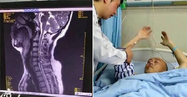 Thanh niên Trung Quốc bị liệt vì chơi game trên điện thoại 2 ngày ròng - Ảnh 2.