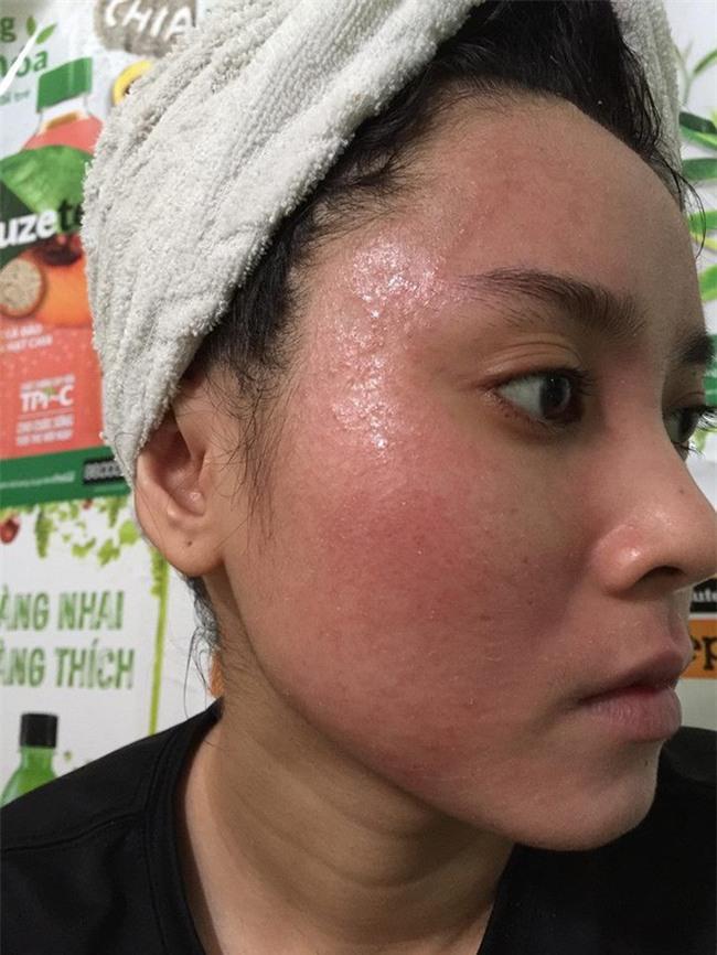 Bôi rượu thuốc bắc để bong da tái tạo, cô gái trẻ bị nổi mụn chi chít, chảy dịch ngứa khắp mặt - Ảnh 2.