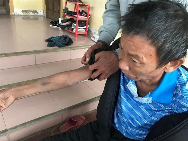 Con trai đánh bố gãy xương, bầm tím khắp người: Nó còn mang xăng định đốt cả bố - Ảnh 7.