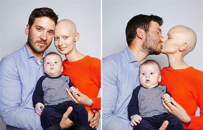 Mất 95% xương hàm và bị buộc phải bỏ đứa con trong bụng vì ung thư, cô người mẫu này đã làm một điều tuyệt vời - Ảnh 5.