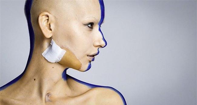 Mất 95% xương hàm và bị buộc phải bỏ đứa con trong bụng vì ung thư, cô người mẫu này đã làm một điều tuyệt vời - Ảnh 7.