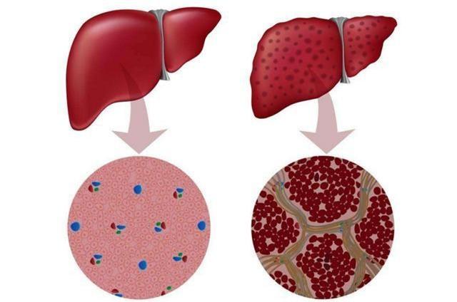34 tuổi mắc ung thư gan giai đoạn cuối, nguyên nhân gây bệnh ai cũng nên đề phòng - Ảnh 3.