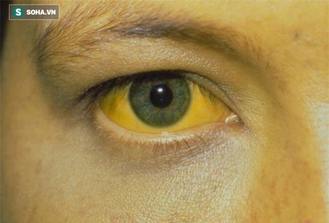 Có dấu hiệu này coi chừng viêm gan nhiễm độc - Ảnh 1.