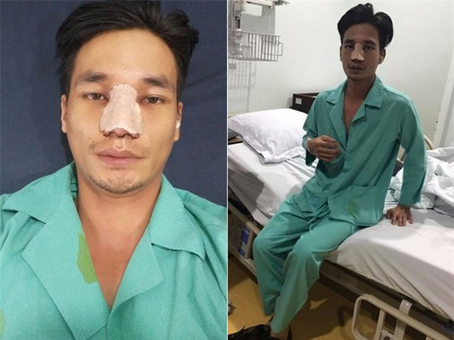 5 ca lột xác đổi đời thành công nhờ dao kéo gây xôn xao mạng xã hội năm 2017 - Ảnh 19.