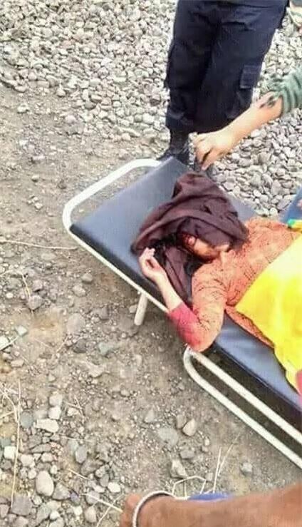 Hớn hở selfie bên đường ray, cô gái bị xe lửa đi qua va vào đầu phải nhập viện khẩn cấp - Ảnh 3.