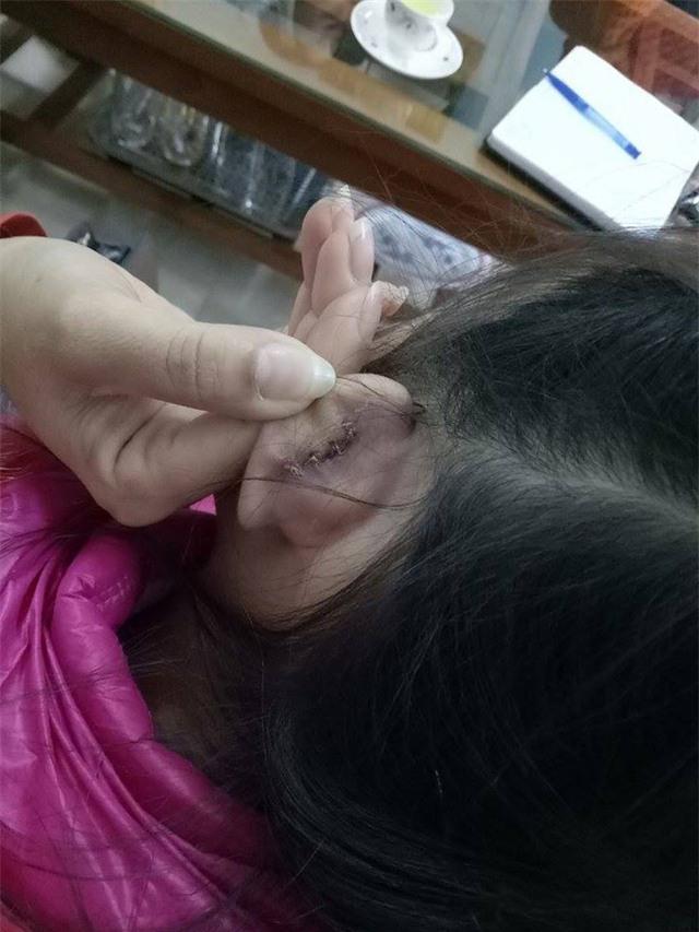 Vết rách phải khâu 4 mũi của học sinh Q.A sau khi bị cô giáo xách tai