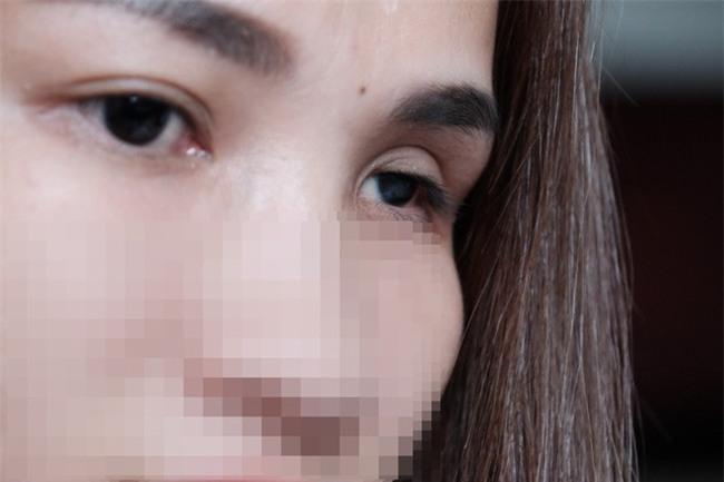"""Cô gái mù mắt trái sau khi tiêm filler: """"Không có bạn trai, tôi đã không gắng gượng được đến lúc này"""" - Ảnh 1."""