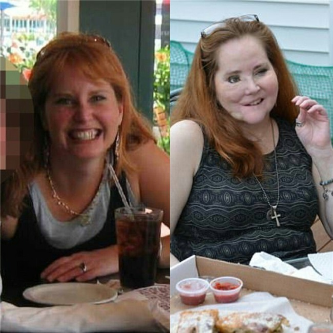 Dùng súng tự sát bất thành khiến dung mạo bị hủy hoại, người phụ nữ trải qua 49 cuộc phẫu thuật để làm lại cuộc đời - Ảnh 1.