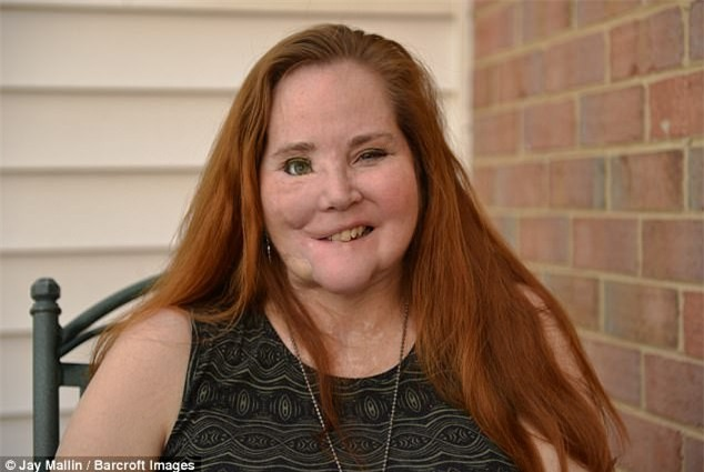 Dùng súng tự sát bất thành khiến dung mạo bị hủy hoại, người phụ nữ trải qua 49 cuộc phẫu thuật để làm lại cuộc đời - Ảnh 2.