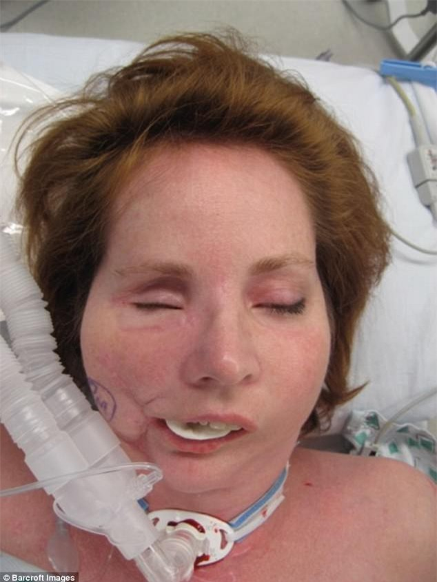 Dùng súng tự sát bất thành khiến dung mạo bị hủy hoại, người phụ nữ trải qua 49 cuộc phẫu thuật để làm lại cuộc đời - Ảnh 3.