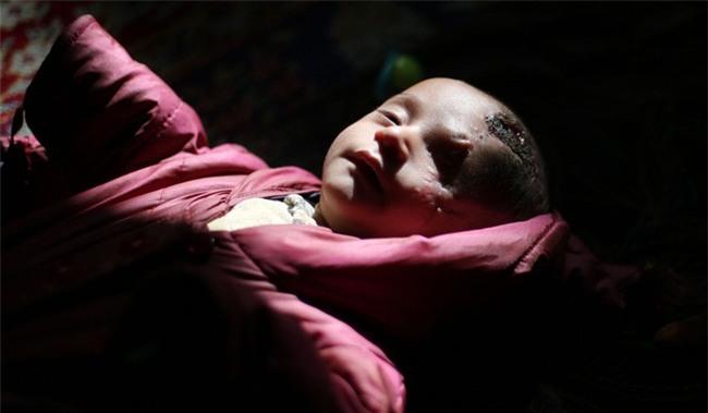 Syria: Xót thương bé 3 tháng tuổi chỉ còn một mắt - Ảnh 2.